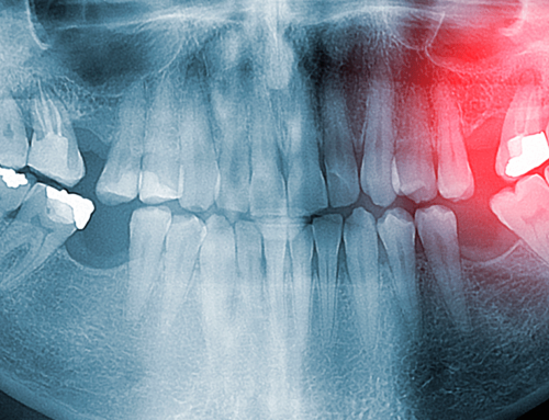 Common Third Molar Problems